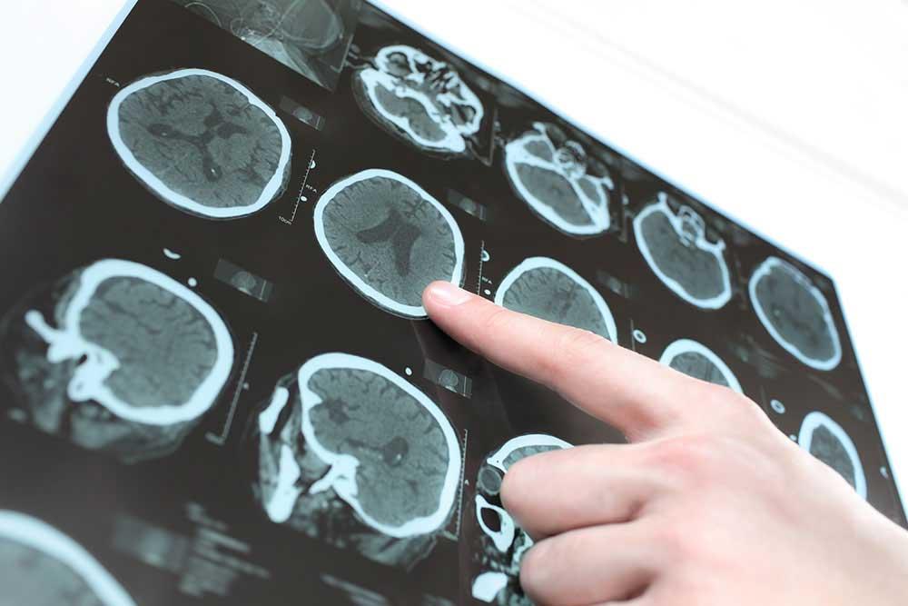 Tratamiento de la enfermedad de Parkinson en Barcelona